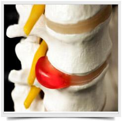 Почему болит спина? Причины боли в спине. Грыжа диска